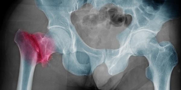 Kop Hals Prothese – gecementeerd