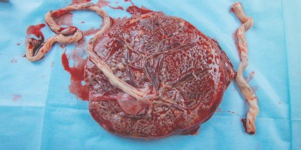 Manuele placenta verwijdering
