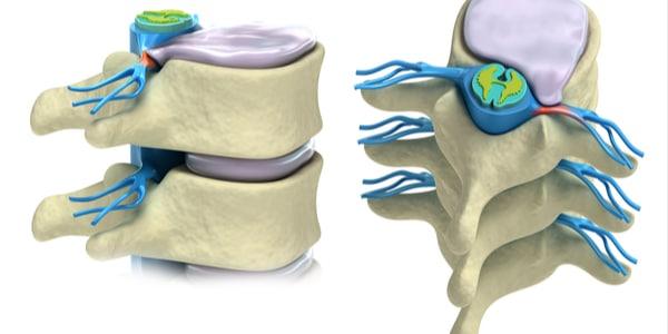 Functionele anatomie voor regionale anesthesie
